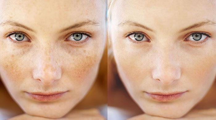 درمان لک و کک و مک