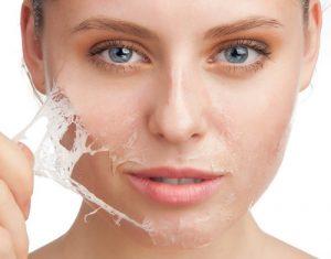 درمان پوست آسیب پذیر