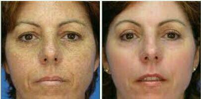 درمان تیرگی پوست در ۱۰ جلسه مزوتراپی