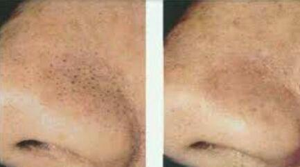 درمان جوشهای سر سیاه به روش میکرودرم