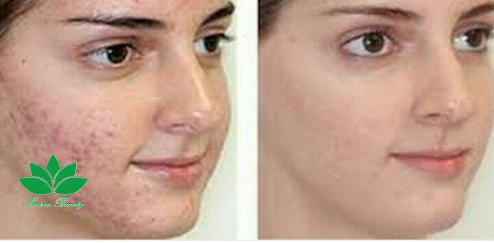 درمان جوش های صورت با مزوتراپی در ۶ جلسه با محصولات مزوارومای ایتالیا