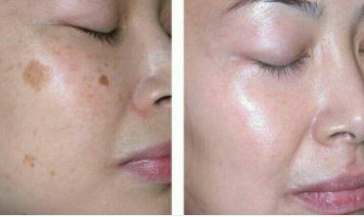 درمان لک در ۸ جلسه با مزوتراپی و میکرونیدلینگ با محصولات ضد لک مزورومای ایتالیا
