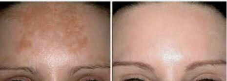 درمان لک پس از زایمان به روش مزوتراپی با کوکتلهای مخصوص ضد لک مزو ارومای اینالیا