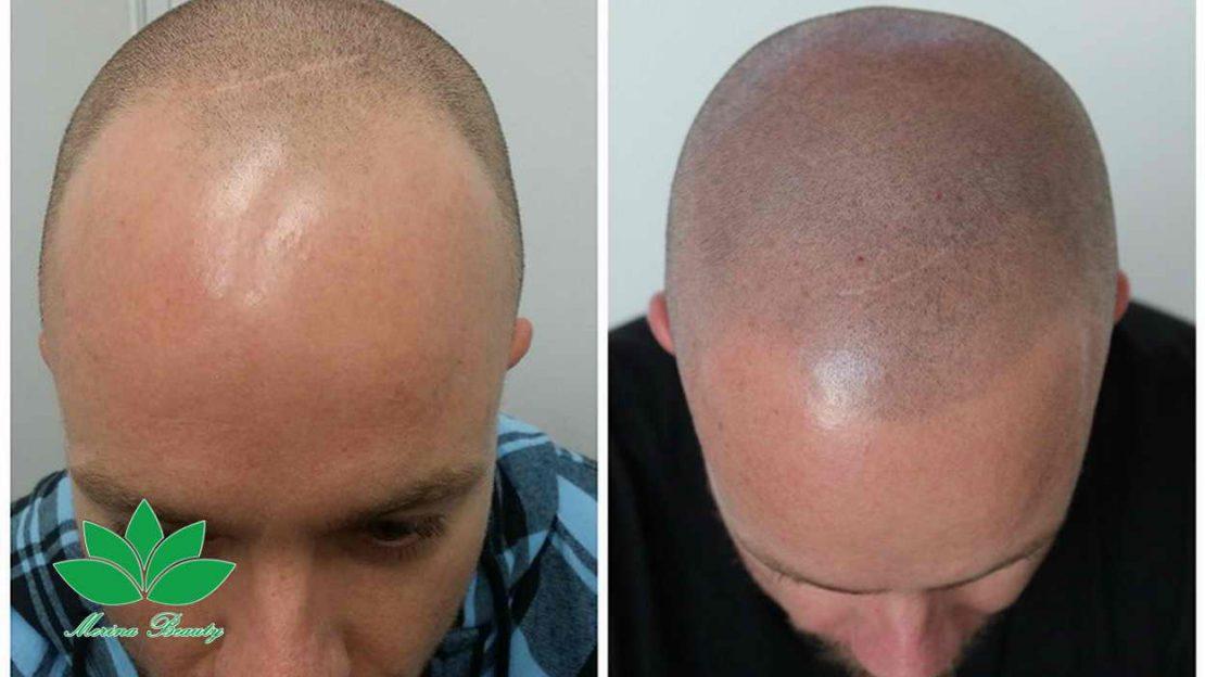 میکروپیگمنتیشن , میکروپیگمنتیشن موی سر برای درمان کم پشتی