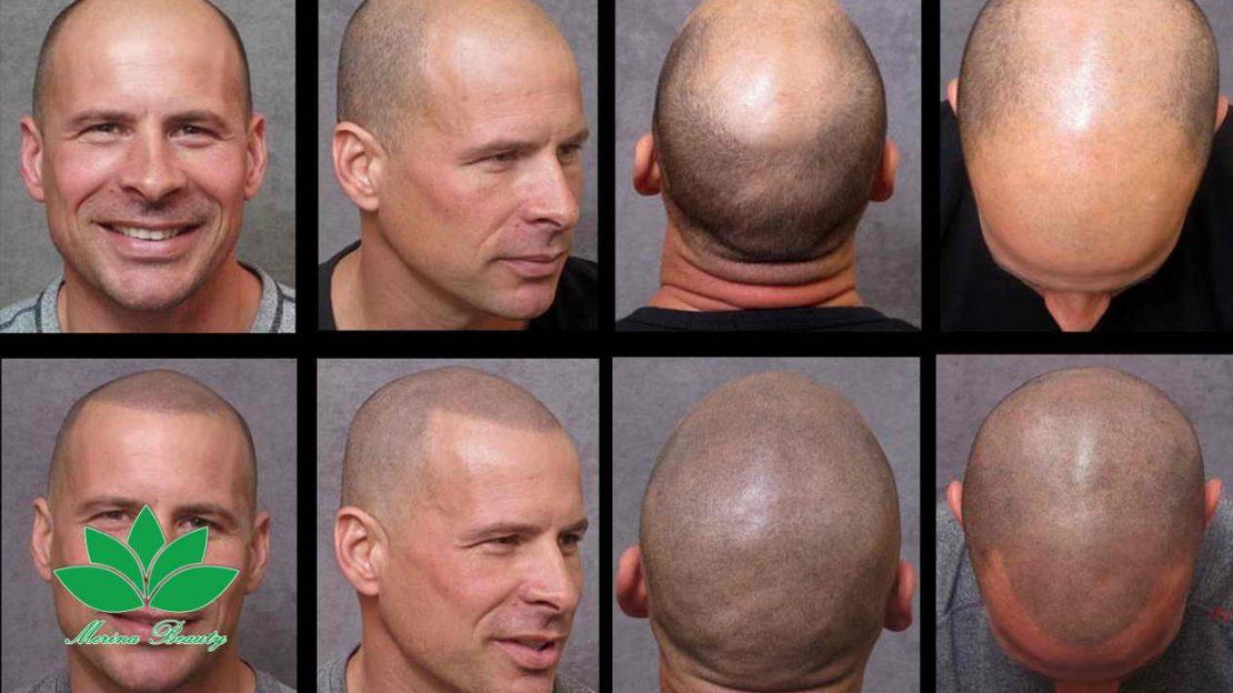 میکروپیگمنتیشن , میکروپیگمنتیشن مو سر برای درمان کم پشتی.