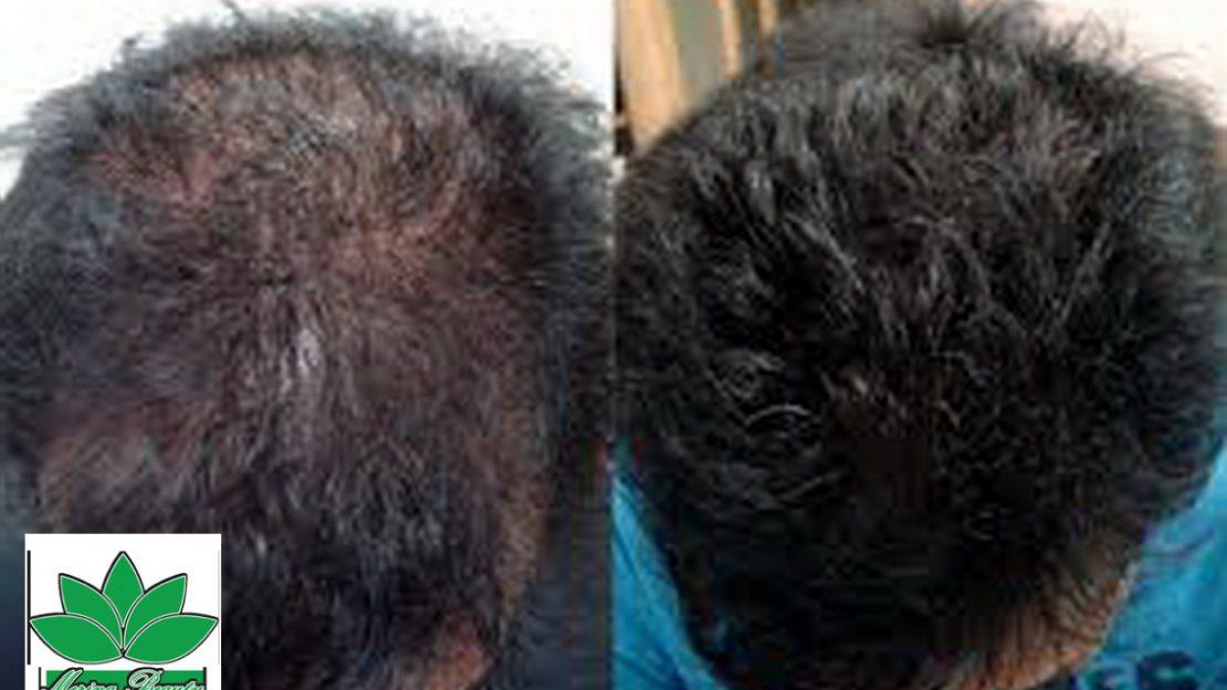 مزوتراپی و تزریق دارو به پوست و مو.