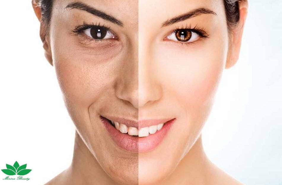 anti-aging-treatments-680x451
