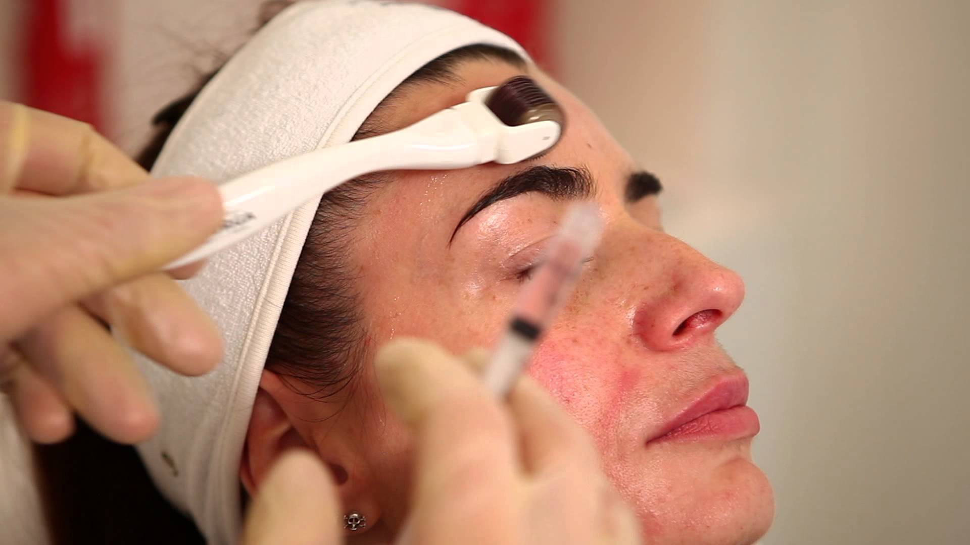 mesotherapy (71)