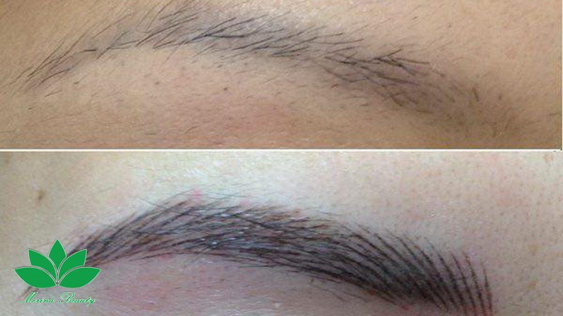 میگروپیگمنتیشن و فواید آن در حوزه آرایش.