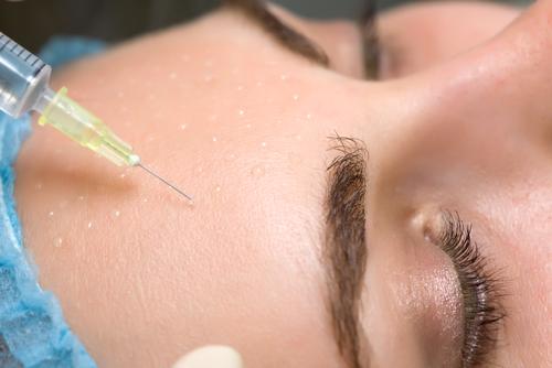 مزوتراپی روشی مدرن در درمان ریزش مو