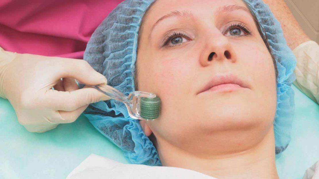 درمان ضایعات پوستی با میکرونیدلینگ