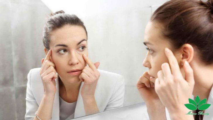 مزوتراپی و رفع سیاهی دور چشم (2)