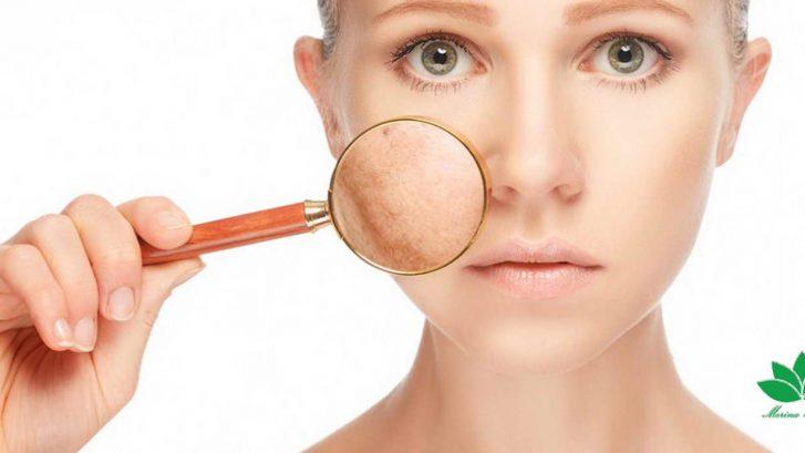 میکرونیدلینگ لک های پوستی (2)