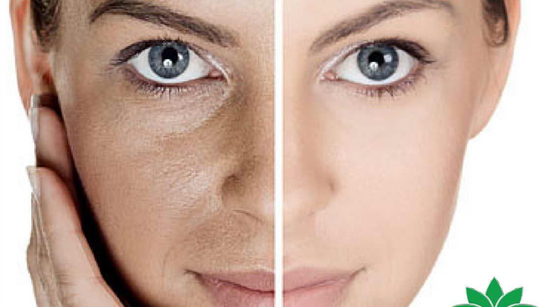 میکرونیدلینگ منافذ باز پوست