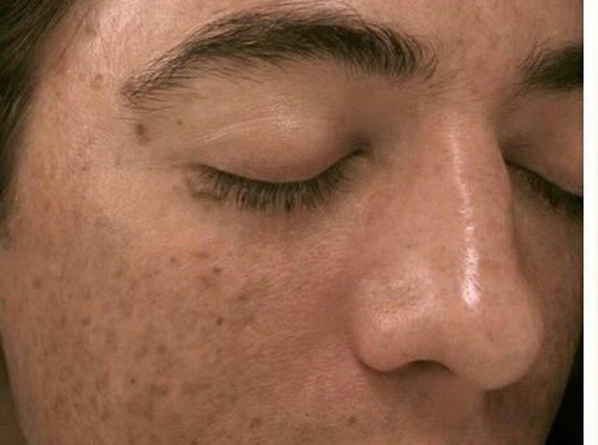 میکرونیدلینگ و درمان کک و مک