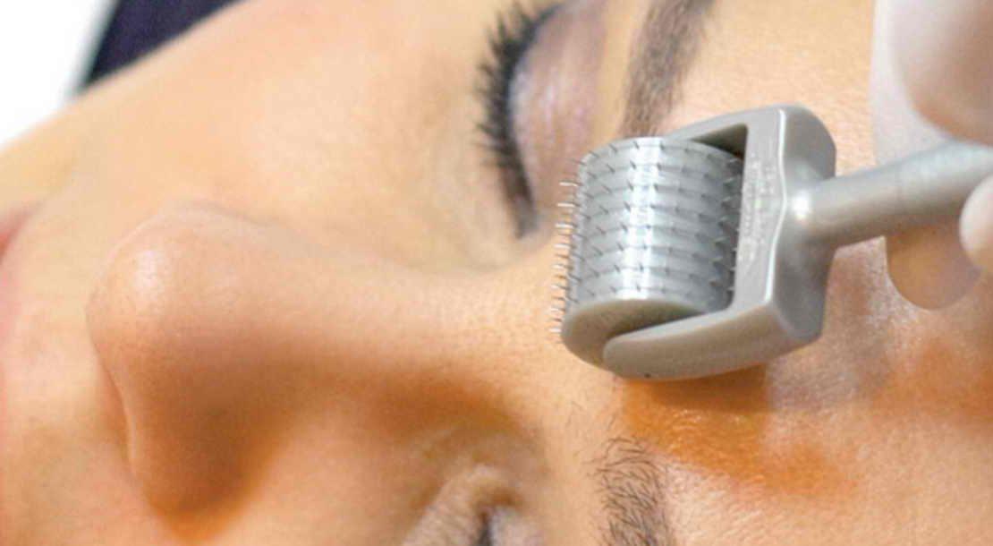 میکرونیدلینگ و درمان لک صورت